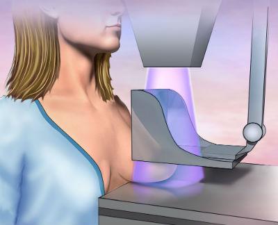 正しい知識で乳がんに向き合おう