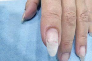 爪が割れた‼︎そんなときに身近にあるものでできるSOS対処方法